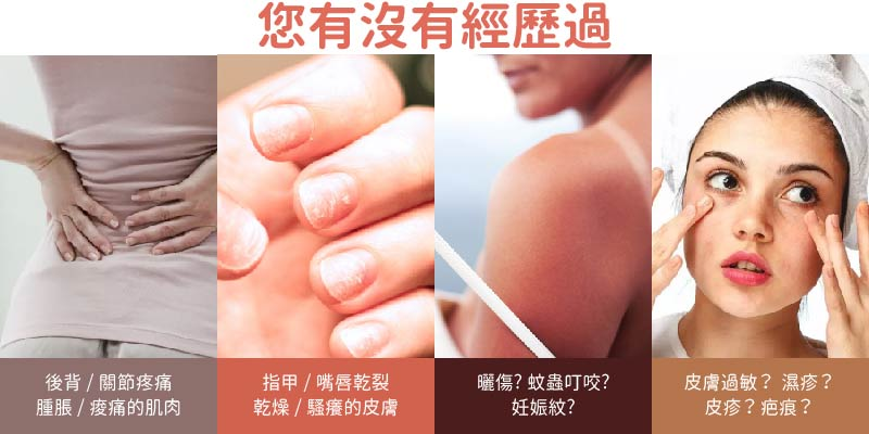 您有沒有經歷過 問題皮膚 皮膚過敏 紅腫 刺痛 曬傷 背痛 關節痛